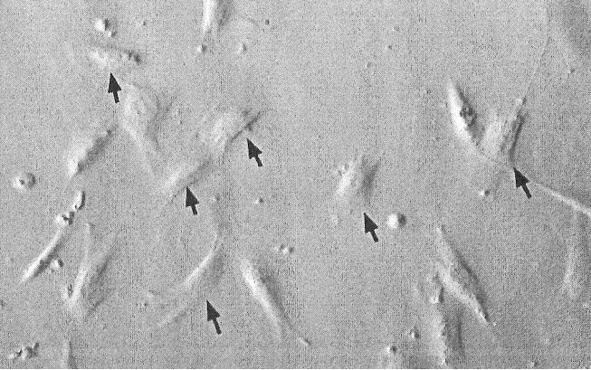 Biệt hoá tế bào gốc trung mô thành tế bào gan