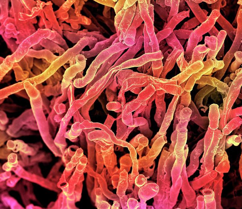 Xạ khuẩn kháng vi khuẩn và nấm bệnh từ đất